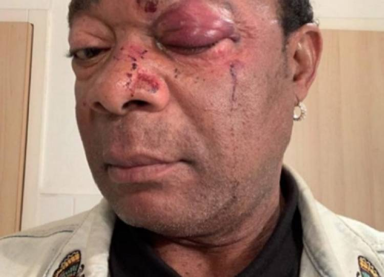 Le chanteur Congolais Djuna Djanana sauvagement agressé en France