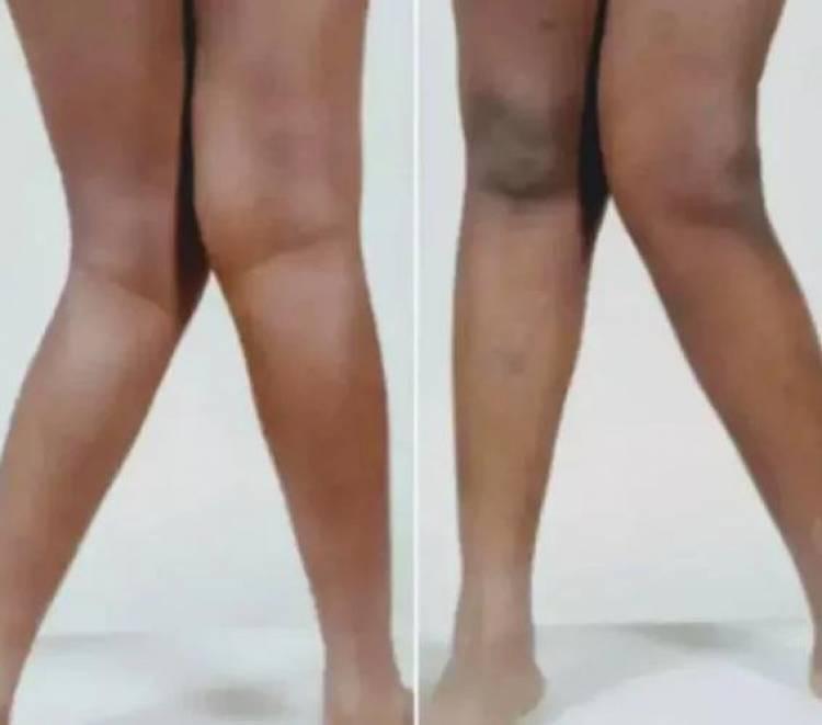 Voici le secret caché derrière les femmes qui ont''les pieds X''